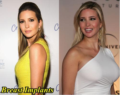Ivanka Trump Breast Implants