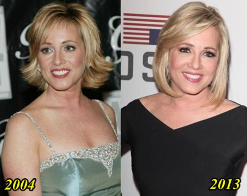Jamie Colby Plastic Surgery
