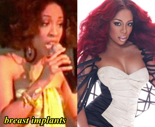 K Michelle Plastic Surgery Breast Implants