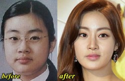 Kang Sora Plastic Surgery Before and After