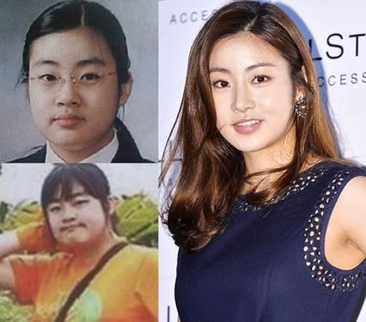 Kang Sora Plastic Surgery