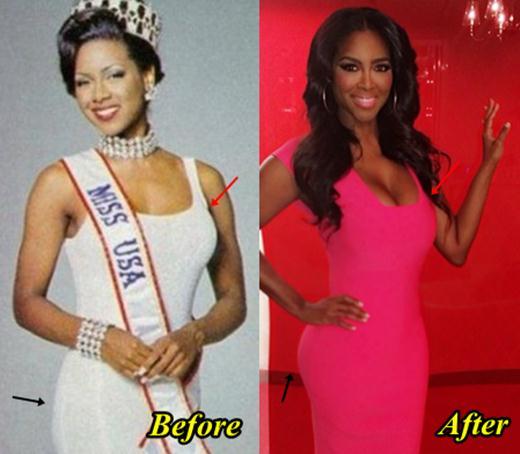 Kenya Moore Plastic Surgery