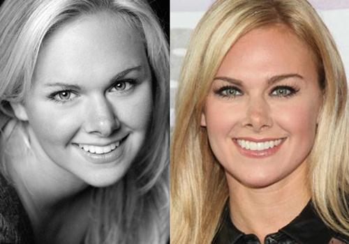 Laura Bell Bundy Plastic Surgery