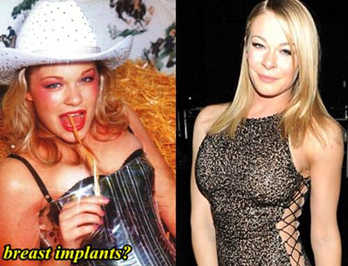 LeAnn Rimes Plastic Surgery Breast Implants