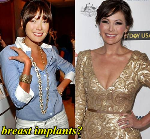 Lindsay Price Breast Implants