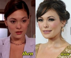 Lindsay Price Plastic Surgery