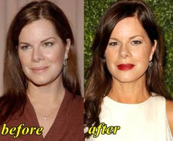 Marcia Gay Plastic Surgery