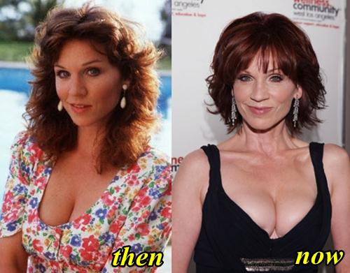 Marilu Henner Plastic Surgery Breast Implants