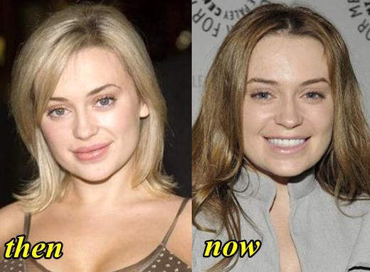Monica Keena Plastic Surgery
