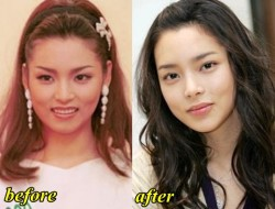 Park Si Yeon Plastic Surgery