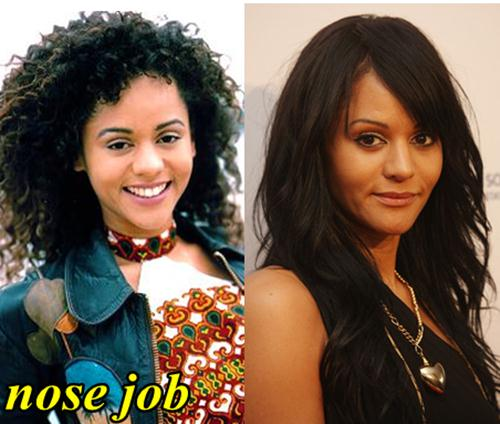 Persia White Plastic Surgery Nose Job
