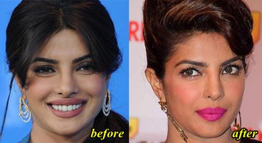 Priyanka Chopra Plastic Surgery Nose job, Lip Surgery, Facelift