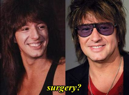Richie Sambora Plastic Surgery Rumor or Fact