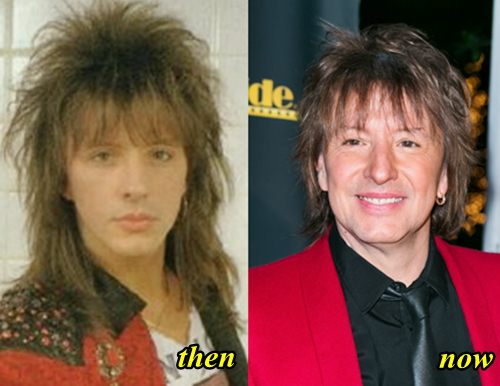 Richie Sambora Plastic Surgery
