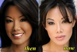 Sharon Tay Plastic Surgery Before and After