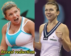 Simona Halep Breast Reduction - Plastic Surgery before and After