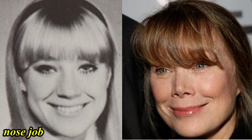 Sissy Spacek Nose Job Before and After
