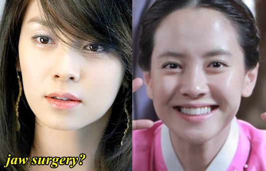 Song Ji Hyo Plastic Surgery Fact or Rumor