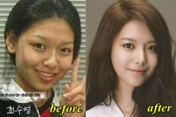 Sooyoung Plastic Surgery
