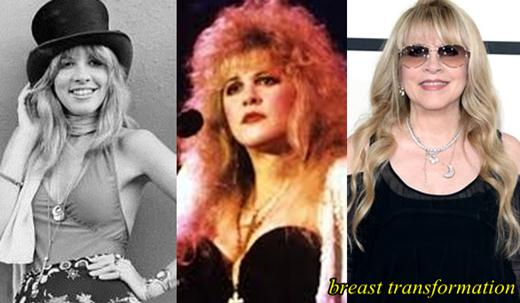 Stevie Nicks Plastic Surgery Breast
