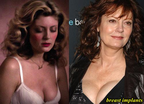 Susan Sarandon Breast Implants