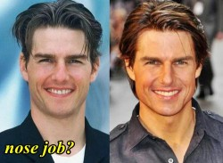 Tom Cruise Nose Job