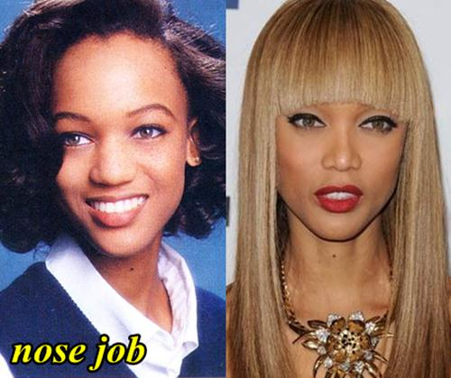 Tyra Banks Nose Job