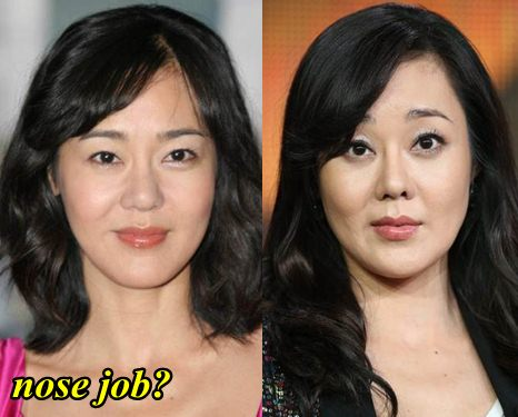 Yunjin Kim Plastic Surgery Nose Job