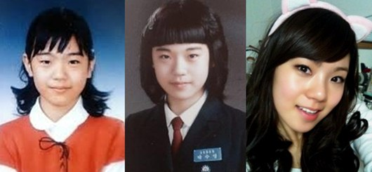 After School Lizzy Plastic Surgery