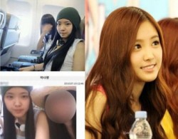 Apink Son Naeun Plastic Surgery Before and After