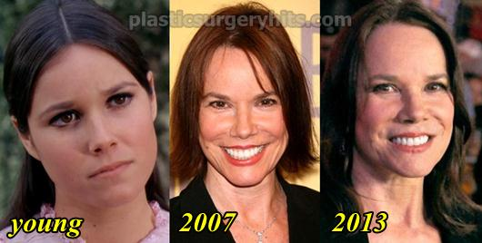 Barbara Hershey Plastic Surgery Before and After