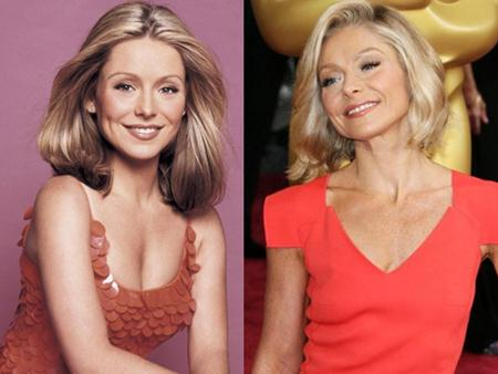 Kelly Ripa Breast Reduction