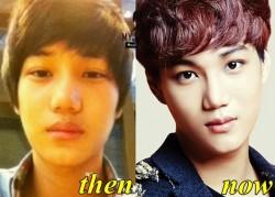 EXO Kai Plastic Surgery