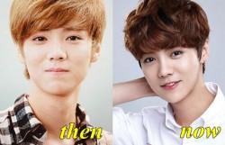 EXO Luhan Plastic surgery