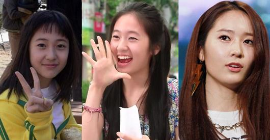 F(x) Krystal Jung Plastic Surgery Before After