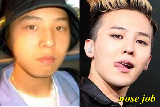 G Dragon Plastic Surgery Nose Job