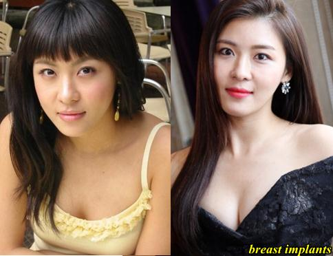 Ha Ji won Breast Implants