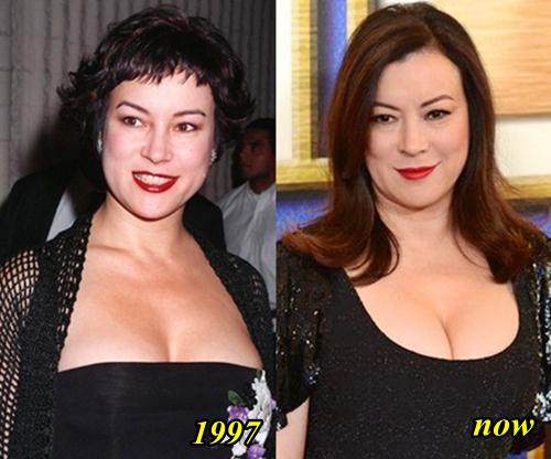 Jennifer Tilly Plastic Surgery Breast Implants