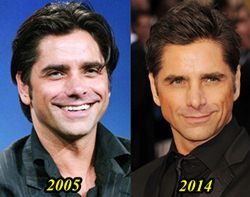 John Stamos Plastic Surgery Before and After