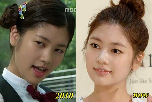 Jung So Min Plastic Surgery Before and After