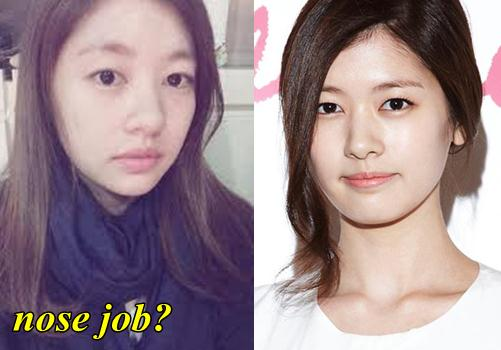 Lee geum hee before and after