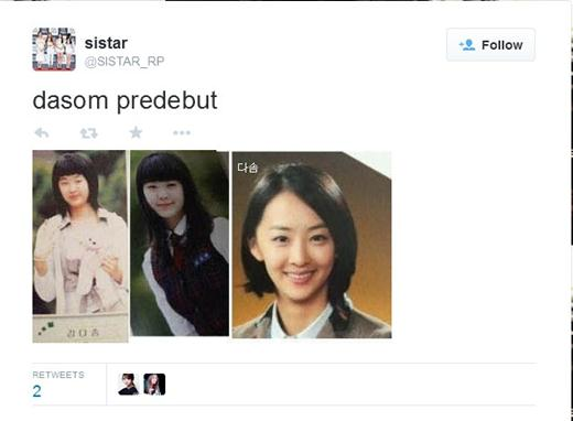 Kim Dasom Plastic Surgery before and after