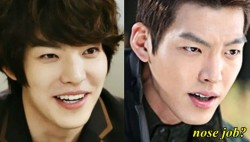 Kim Woo Bin Plastic Surgery Nose Job