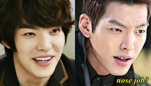 Kim Woo Bin Plastic Surgery Nose Job