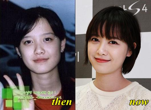Ku Hye Sun Plastic Surgery Before and After - Plastic ...
