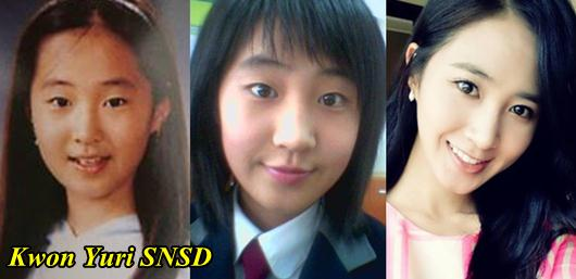 Kwon Yuri SNSD Plastic SurgeryYuri Snsd Before And After