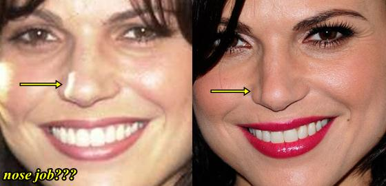 Lana Parrilla Plastic Surgery Nose Job
