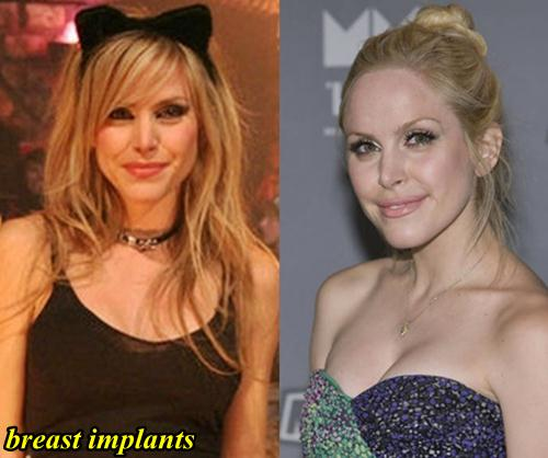 Leah Miller Breast Implants