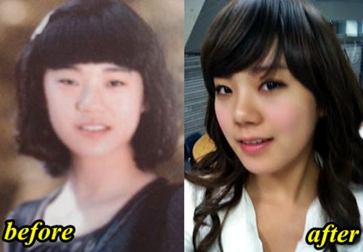 Lizzy Plastic Surgery