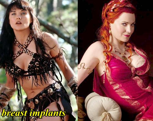 Lucy Lawless Breast Implants